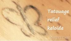 tatouage-relief-keloide